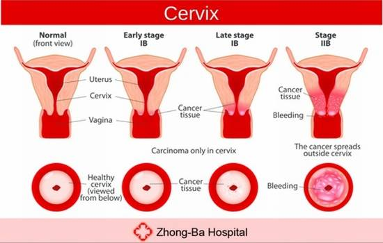 causes of cervix